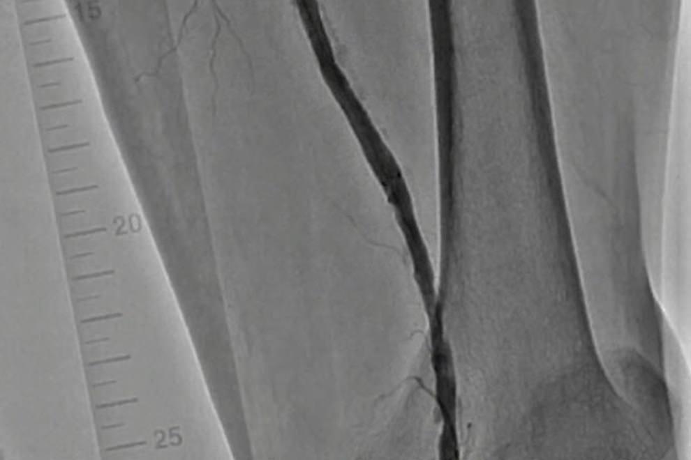 末梢動脈疾患(下肢閉塞動脈硬化症・急性動脈閉塞)